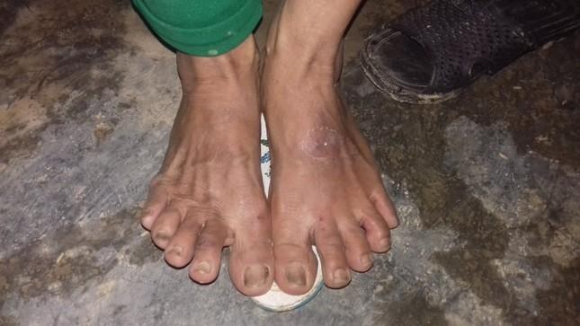 Những đôi chân ứa máu của người dân vùng lũ ảnh 2