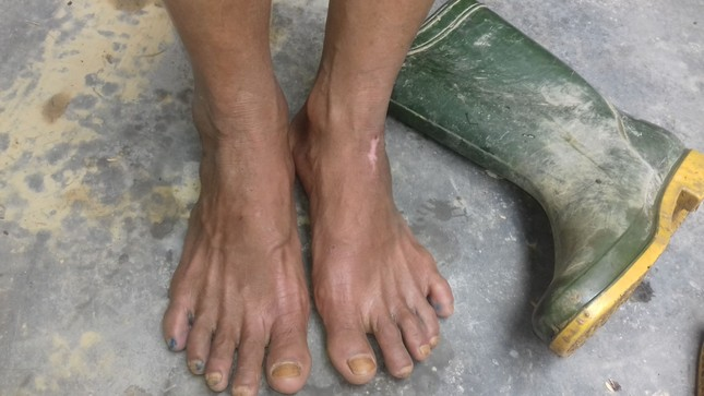 Những đôi chân ứa máu của người dân vùng lũ ảnh 6