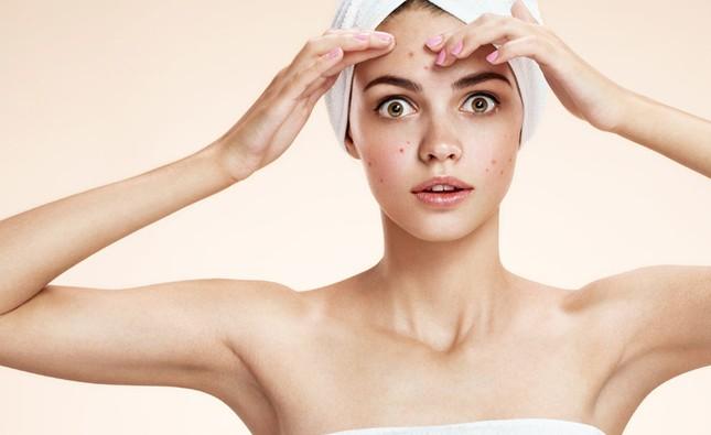 Bạn có bao giờ tự hỏi sao da mặt đã hết mụn rồi, một thời gian sau lại bị trở lại? ảnh 1