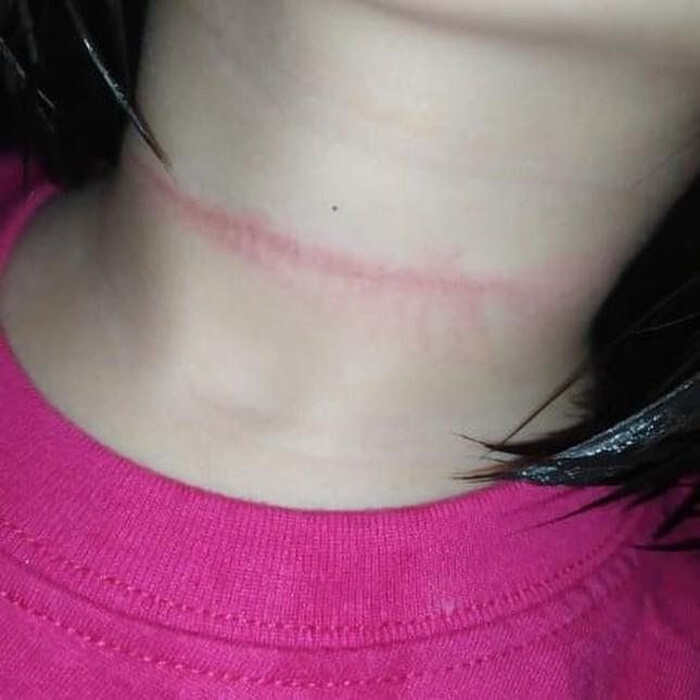 Bé gái 4 tuổi ở Philippines suýt mất mạng khi thực hiện theo thử thách treo cổ trên TikTok ảnh 2