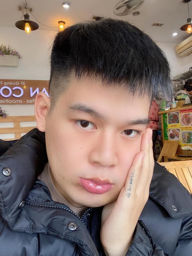 Hot TikToker Long Chun giữ tinh thần lạc quan sau 1 tháng điều trị u men xương hàm ảnh 1