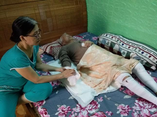 Cụ bà 82 tuổi bị phỏng nặng lúc nấu ăn được cứu sống ngoạn mục ảnh 2