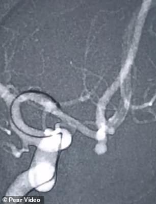 Người phụ nữ suýt chết vì vỡ mạch máu não khi cố hát karaoke nốt cao ảnh 1