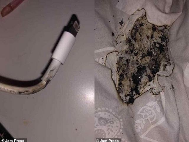 Thiếu nữ bị bỏng mặt vì iPhone bất ngờ phát nổ khi cắm sạc qua đêm ảnh 1