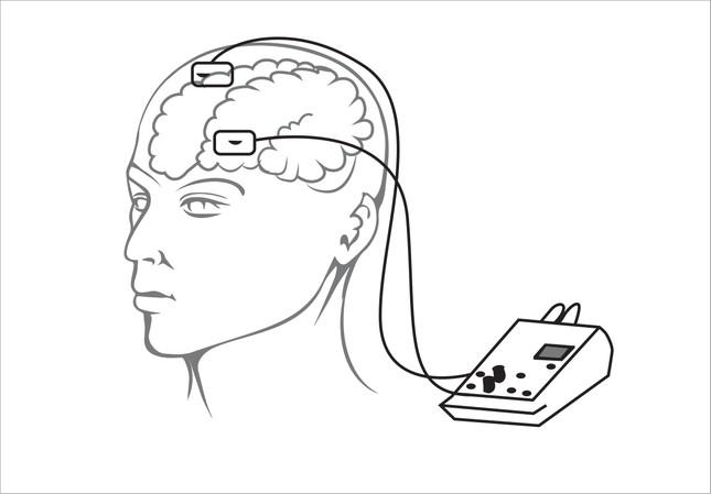 Kích điện não để trí óc binh sĩ sáng suốt hơn ảnh 1