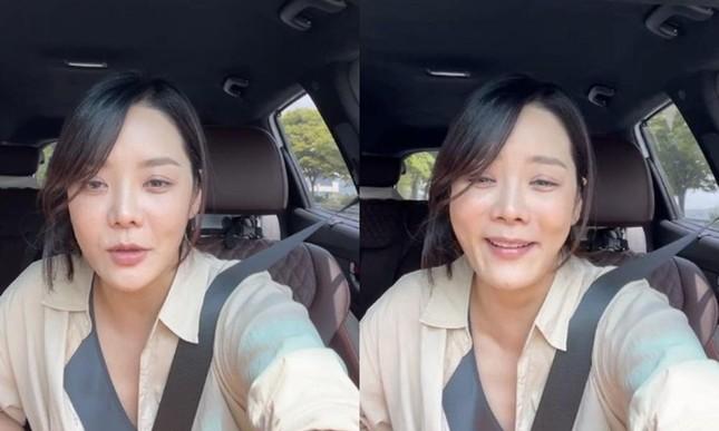 Chae Rim lộ gương mặt cứng đơ, còn đâu nữ thần ngọt ngào khiến fan một thời thương nhớ ảnh 4