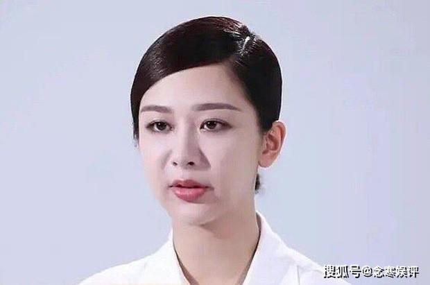 Cư dân mạng sốc với clip Dương Tử lộ gương mặt sưng, cứng đờ: Sự thật là? ảnh 3