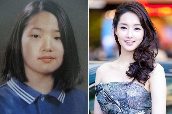 """Sự thật gây sốc về bức ảnh của """"Nữ hoàng dao kéo"""" Park Min Young trước khi thẩm mỹ ảnh 5"""