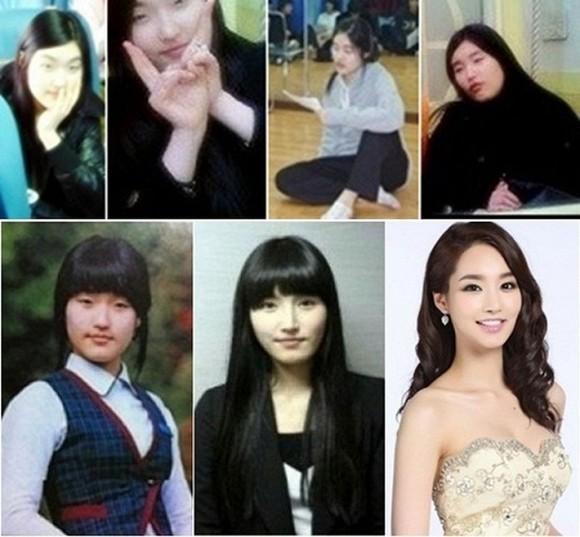 """Sự thật gây sốc về bức ảnh của """"Nữ hoàng dao kéo"""" Park Min Young trước khi thẩm mỹ ảnh 4"""