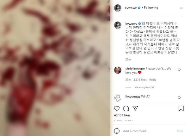 """Mina (AOA) đăng ảnh cổ tay đầy máu, khẳng định: """"Các người chẳng biết gì về tôi cả"""" ảnh 1"""