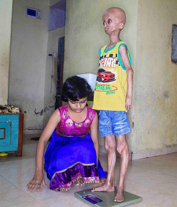 Bé trai 14 tuổi già như ông lão vì mắc bệnh lạ ảnh 3