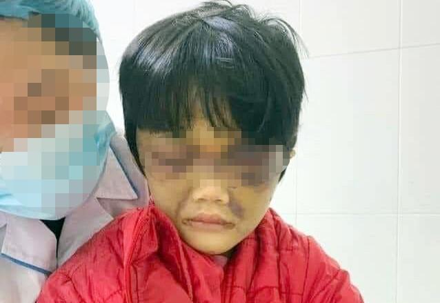 Điều tra vụ bé gái 6 tuổi ở Hải Dương bị mẹ bạo hành phải nhập viện ảnh 1