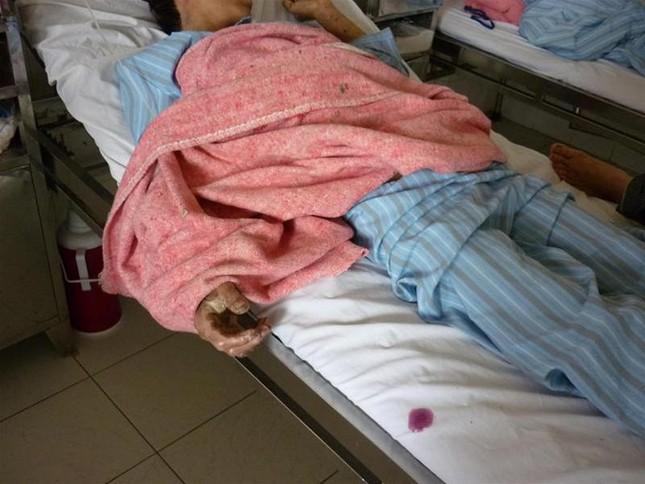 Thêm 2 người nhập viện vìlợn tai xanh ảnh 1