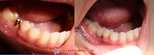 Trồng răng cấm giá bao nhiêu là chuẩn nhất? ảnh 1