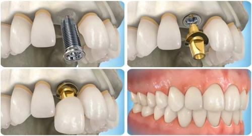 Trồng răng cấm giá bao nhiêu là chuẩn nhất? ảnh 2