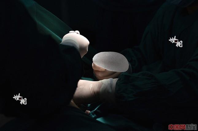 Tận thấy ca phẫu thuật nâng ngực của người mẫu Trung Quốc ảnh 7