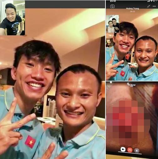 Dân mạng xót xa bức ảnh Văn Hậu bị thương ở chân do Quang Lê chia sẻ ảnh 1
