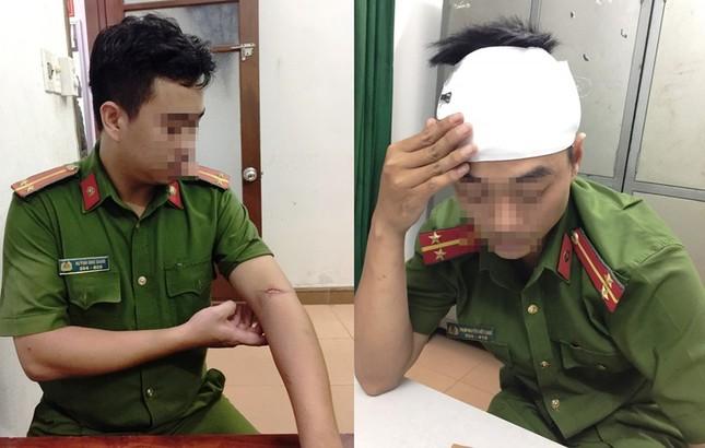 Vụ cảnh sát bị côn đồ vây chém dã man: Bắt thêm một nghi phạm ảnh 3