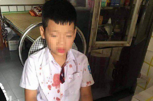 Nhà trường nói gì vụ người đàn ông đấm hộc máu mồm học sinh lớp 1 ảnh 1