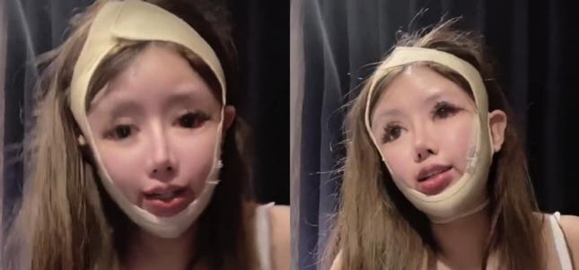 Thiếu nữ 16 tuổi phẫu thuật thẩm mỹ 100 lần trong ba năm ảnh 4