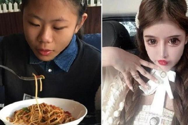 Thiếu nữ 16 tuổi phẫu thuật thẩm mỹ 100 lần trong ba năm ảnh 3