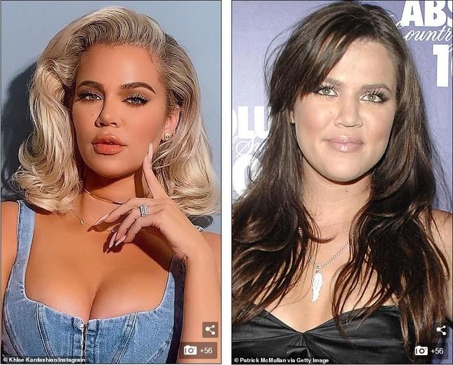 Khloe Kardashian đăng video bán nude khẳng định không chỉnh sửa ảnh ảnh 4