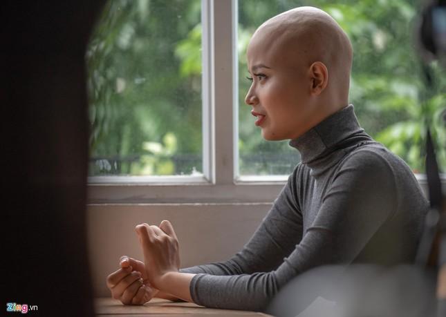 """Nữ sinh ĐH Ngoại thương: """"Không nghĩ ung thư đến khi mới 19 tuổi"""" ảnh 1"""