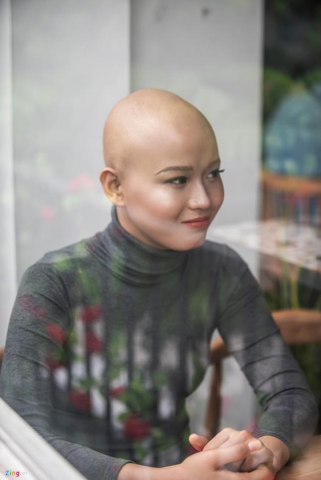 """Nữ sinh ĐH Ngoại thương: """"Không nghĩ ung thư đến khi mới 19 tuổi"""" ảnh 4"""