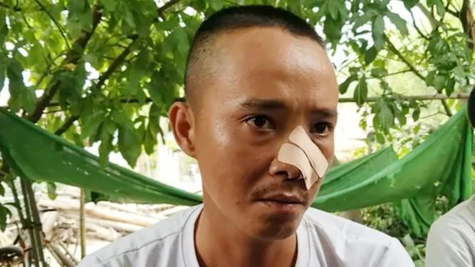 Vệt máu, đồ đạc ngổn ngang tại căn nhà 3 cha con bị chém ở Quảng Nam - ảnh 1