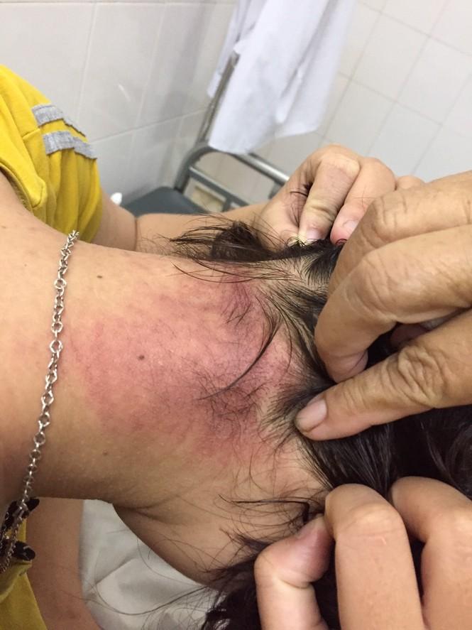 Nằm viện, nhiều  bệnh nhân thành nạn nhân của kiến ba khoang - ảnh 1