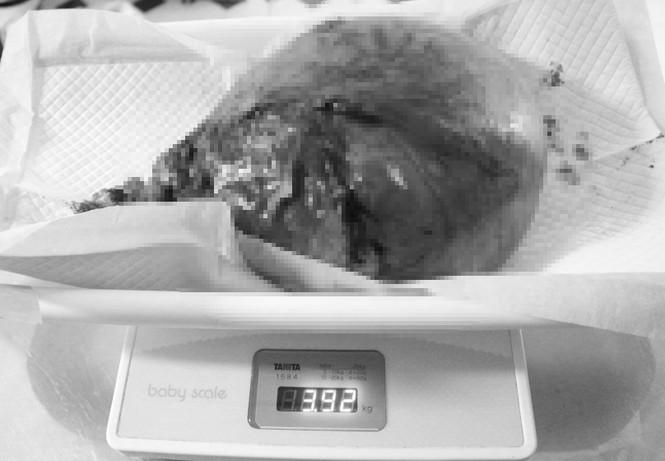 Cắt bỏ khối u nặng hơn đứa trẻ sơ sinh nằm trong tử cung người phụ nữ - ảnh 1