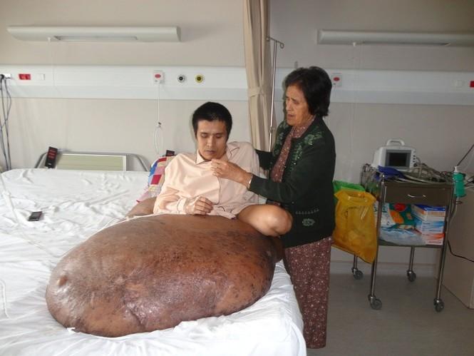 Bà Nguyễn Thị Cho Con, mẹ anh Hải đang chăm con trước lúc phẫu thuật
