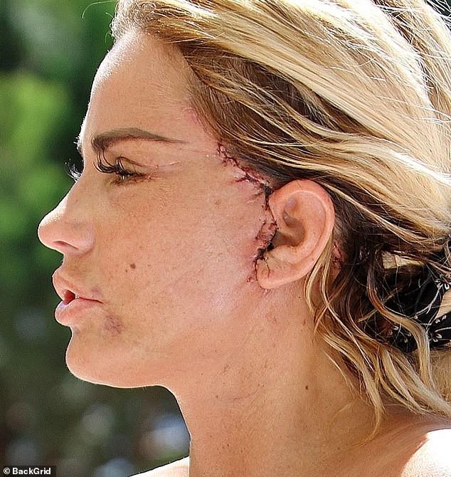 Katie Price mang mặt sẹo, bó căng ngực đi bơi hậu 'đại tu' ngoại hình - ảnh 2