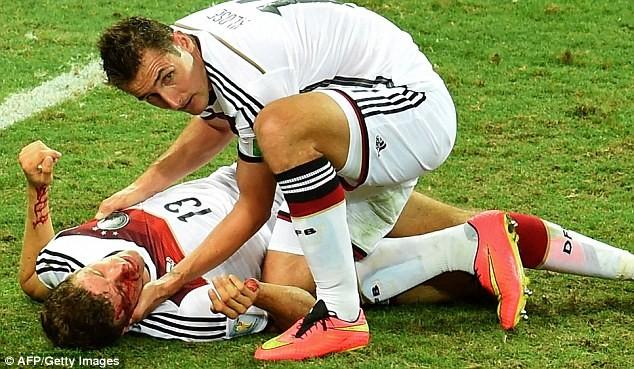 Vì sao Muller rời sân với khuôn mặt bê bết máu? - ảnh 2