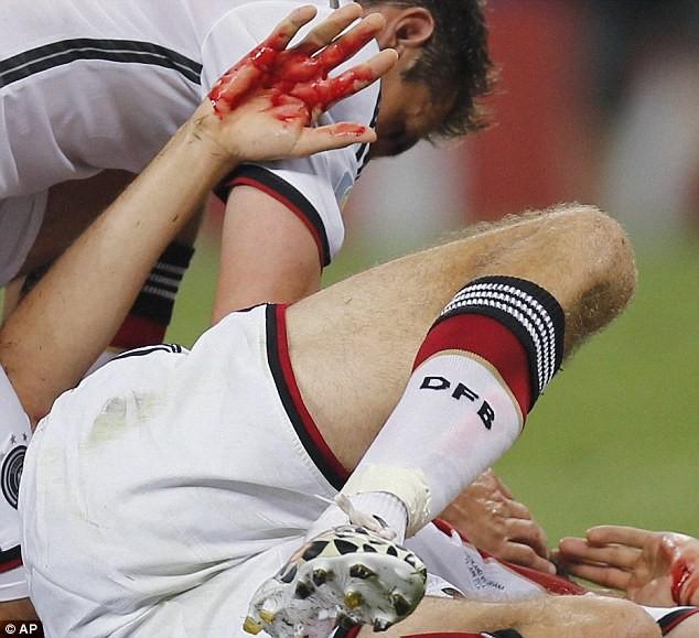 Vì sao Muller rời sân với khuôn mặt bê bết máu? - ảnh 3