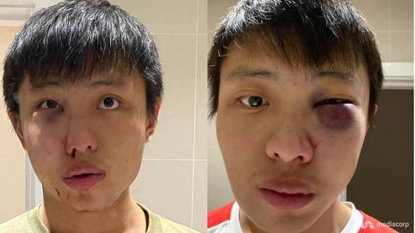 Truy tìm 4 thanh niên sau vụ tấn công sinh viên gốc Hoa giữa dịch Covid-19 - ảnh 1