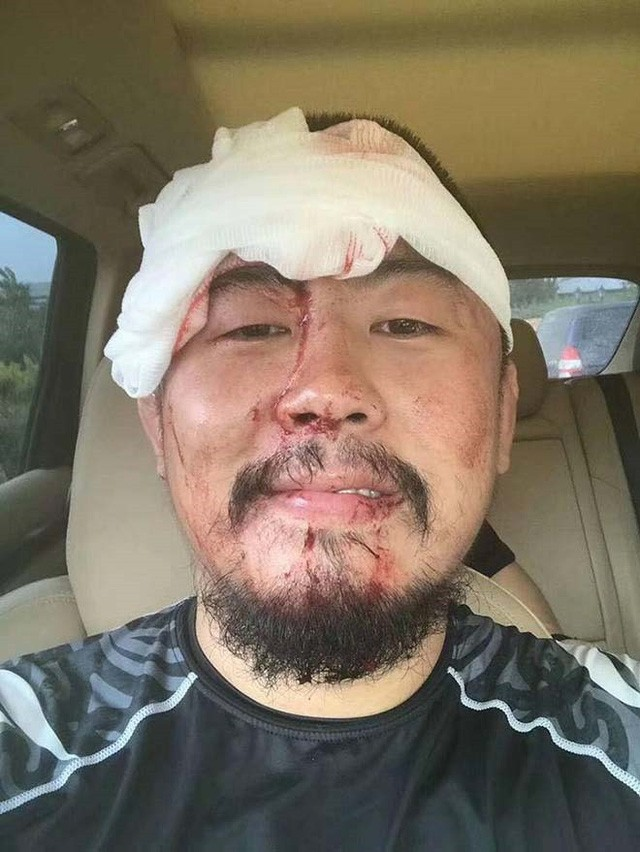 Từ Hiểu Đông bị võ sĩ Muay Thái đánh 'no đòn' phải khâu 28 mũi - ảnh 1