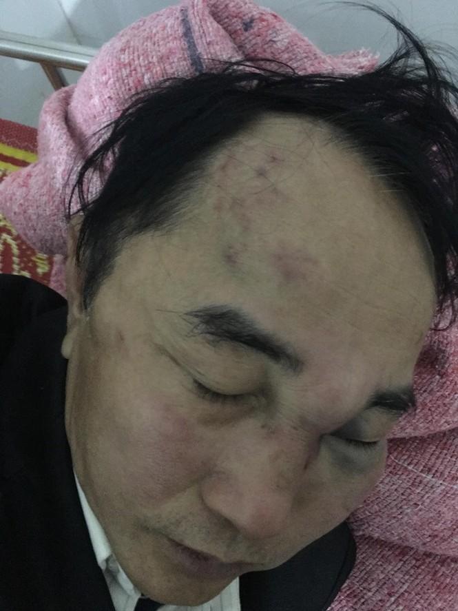 Nam bác sỹ bị đánh nhập viện do mâu thuẫn với tiệm Trà chanh - ảnh 1