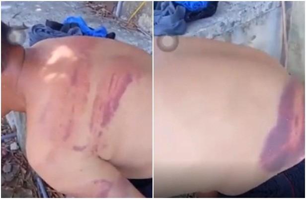 Dư luận bức xúc clip người đàn ông mù với nhiều vết thương bầm tím  - ảnh 1
