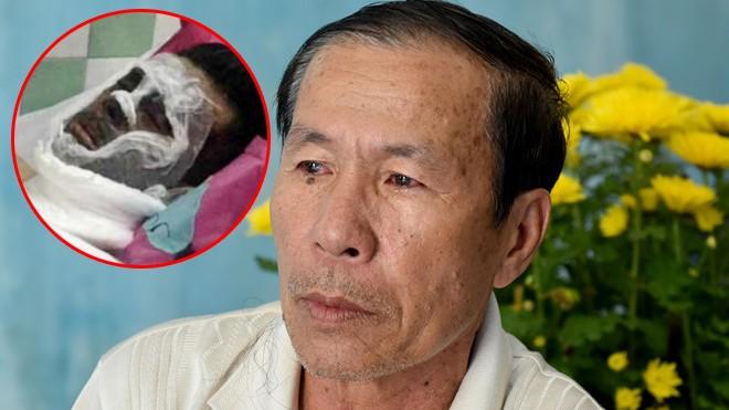 Vụ tạt axit, cắt gân chân Việt kiều: Bất ngờ lời kể của cha nạn nhân - ảnh 1