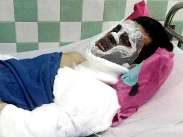 Vụ tạt axit, cắt gân chân Việt kiều: Bất ngờ lời kể của cha nạn nhân - ảnh 2