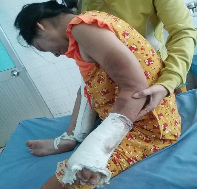 Thai phụ bị người tình đánh gãy tay chân - ảnh 1