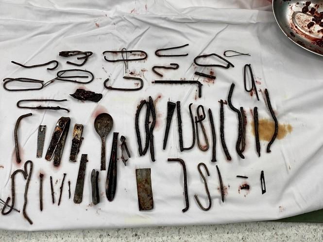 Bác sĩ 'choáng' khi phát hiện vô số đinh, thìa, lưỡi dao trong bụng nam bệnh nhân - ảnh 3