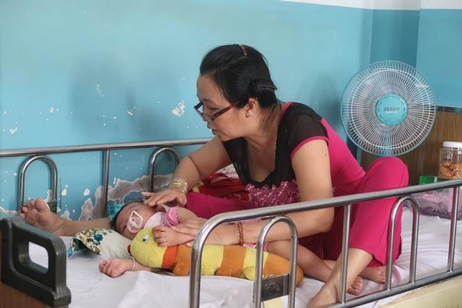 Sởi bùng phát tại TPHCM: Người lớn, trẻ nhỏ ùn ùn nhập viện - ảnh 2
