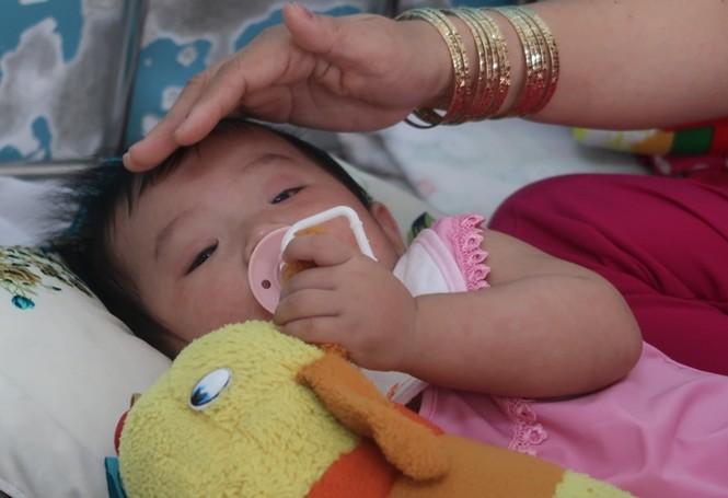Sởi bùng phát tại TPHCM: Người lớn, trẻ nhỏ ùn ùn nhập viện - ảnh 1
