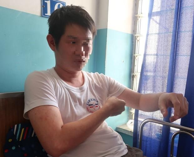 Sởi bùng phát tại TPHCM: Người lớn, trẻ nhỏ ùn ùn nhập viện - ảnh 6