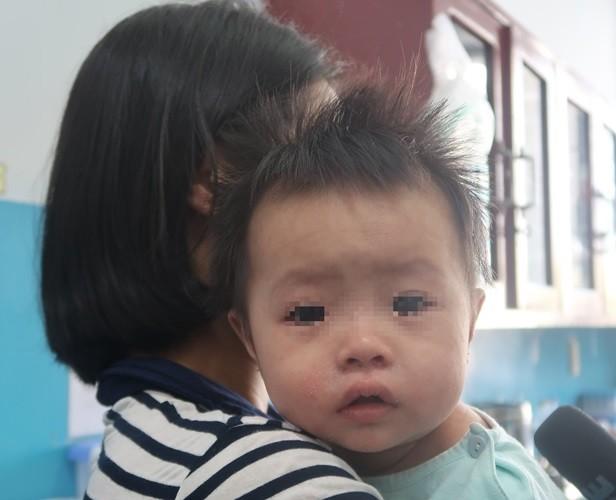 Sởi bùng phát tại TPHCM: Người lớn, trẻ nhỏ ùn ùn nhập viện - ảnh 5