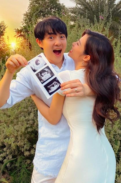 Đông Nhi: Tôi hạnh phúc khi mang thai ở tuổi 32, tình cảm tốt đẹp hơn sau cưới - ảnh 1