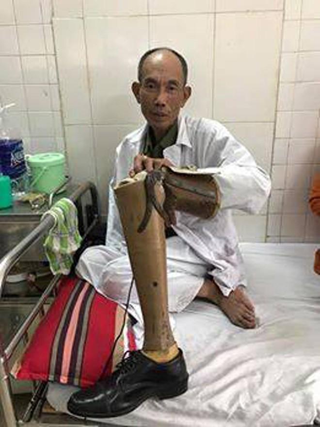 Vụ cựu binh bị đánh: Công an tiếp nhận đơn đề nghị khởi tố vụ án - ảnh 1