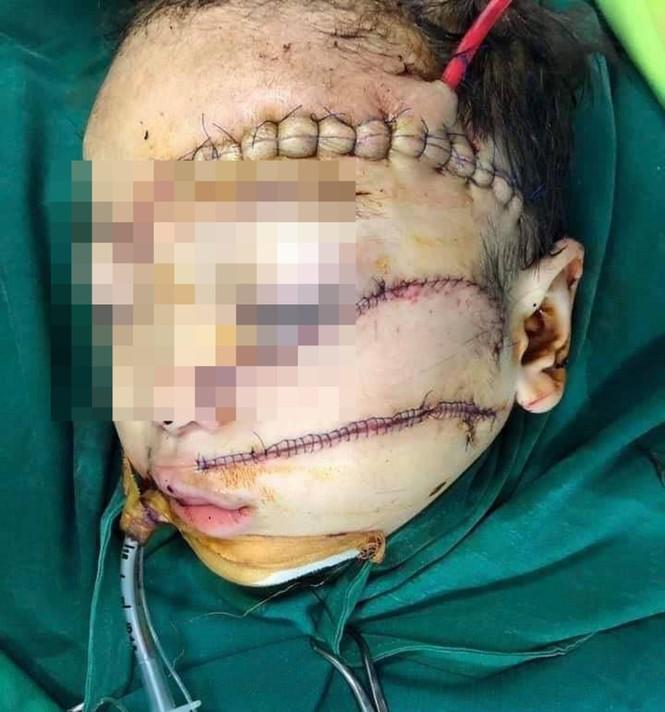 Bé trai 5 tuổi bị cha chém nguy kịch - ảnh 1